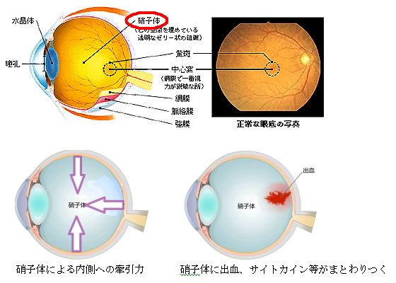 後眼部の解剖 « 井上眼科医院